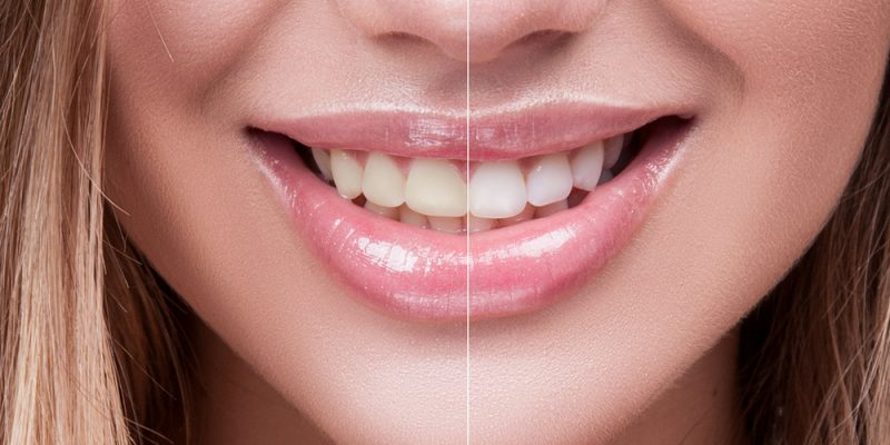 6 Best Teeth Whitening Kits For Home Use Best Teeth Whitening Kits